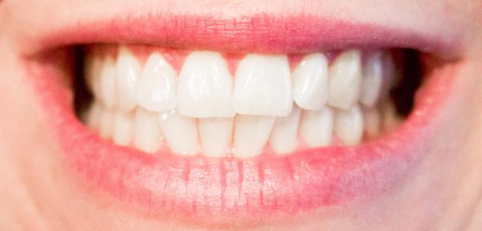 Prevenzione della parodontite: yogurt e latti fermentati proteggono le gengive
