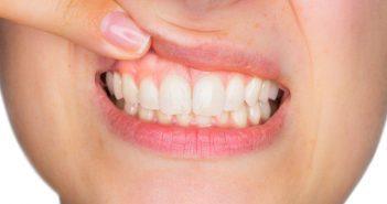 Latticini: quanti benefici per una bocca sana